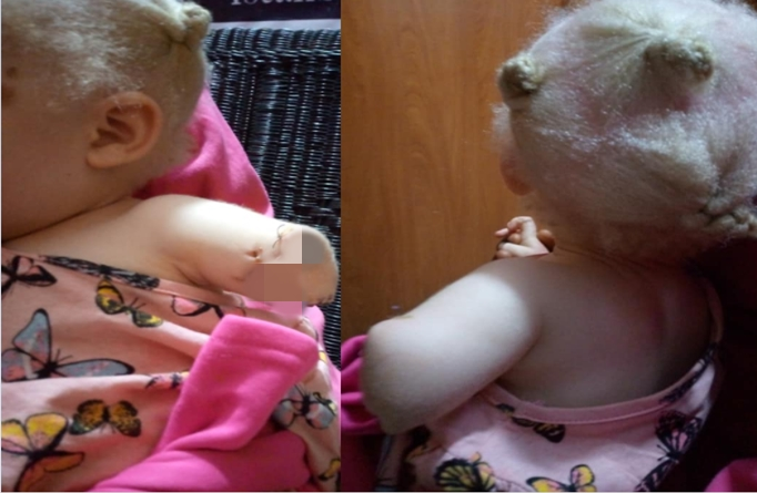 Toddler's hand chopped off by albino hunters pretending to be police officers in Zambia