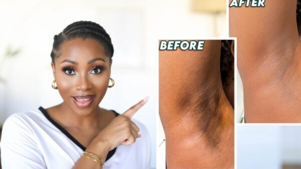 Let Dimma Umeh Show You How to Get Rid of Dark Underarms